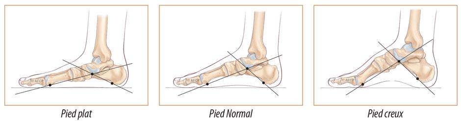 chaussure orthopedique pied tordu
